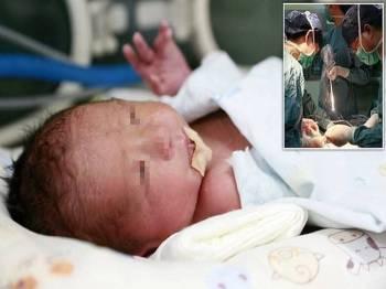Bayi seberat 2 kg itu menjadi bayi pertama di China dilahirkan melalui prosedur pemindahan rahim.