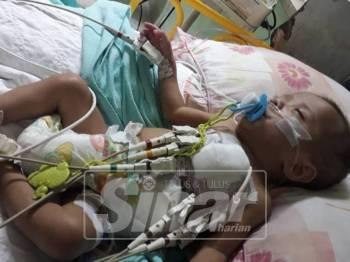 Muhammad Qhaidnadzir akan menjalani pembedahan kesembilan membabitkan usus dan jantung.