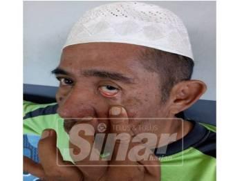 Syed Mohd Yazid menunjukkan matanya yang kini tidak lagi mampu melihat akibat ditimpa durian.