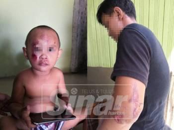 Muhammad Ashraf (kiri) yang cedera pada muka dan dahi. Suhaimi turut cedera di tepi pinggang dan lengan kirinya selepas bergelut dengan suspek.
