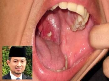 Difteria. Gambar kecil: Sahruddin