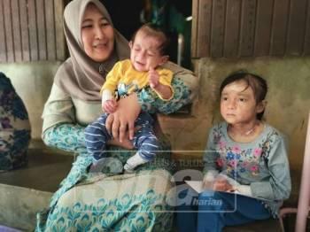 Nik Melisa bersama dua anak yang menghidap penyakit EB.