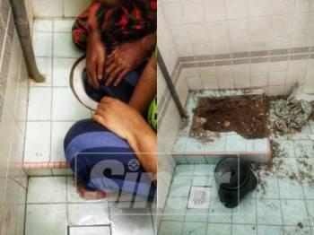 Kaki wanita yang tersepit di dalam mangkuk tandas. - Foto Ihsan Bomba
