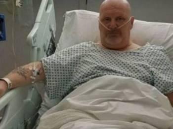 Bob Allshop mengalami kecederaan tahap tiga selepas vape di dalam poket seluarnya meletup.