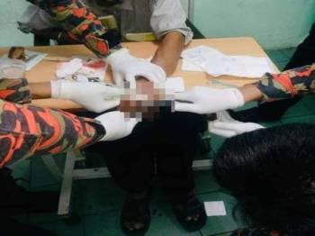 Operasi memotong jari pada jari mangsa. - Foto JBPM KL