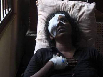 Anusha Kumari, 43, antara mangsa cedera dalam serangan ke atas Gereja St Sebastian di Negombo.