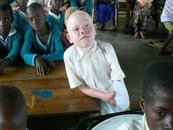 Golongan albino di Tanzania sering diculik dan bahagian tubuh mereka diambil untuk digunakan sebagai tangkal dan ramuan ajaib dengan kepercayaan ia akan membawa kekayaan dan nasib baik.