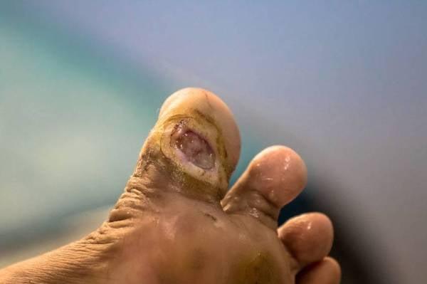 Kesan kencing manis yang jelas kelihatan adalah luka yang lambat sembuh.