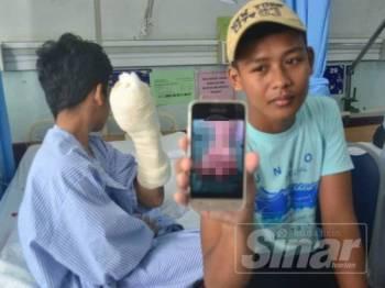 Mohammad Iqhbal (kiri) menunjukkan tangan kirinya yang berbalut sementara sepupunya, Isma Ikhwan Eshem menunjukkan gambar tangan yang hancur ketika ditemui di HRPZ 2, Kota Bharu hari ini.