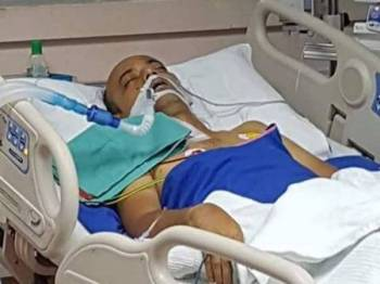 Keadaan Mohd Shuhada ketika bertarung nyawa di ICU HKL akibat dijangkiti kuman leptospirosis tahun lalu.