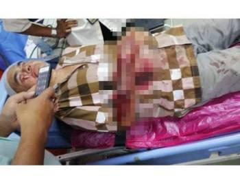 Gambar Alias yang cedera dalam cubaan ragut tular di laman sosial sejak semalam.