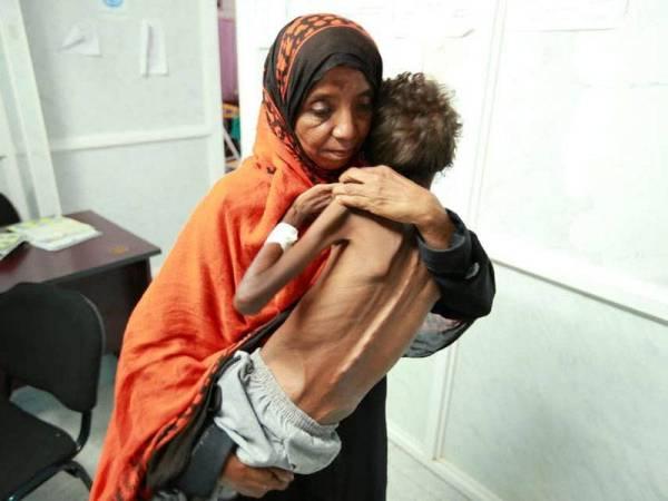 Seorang wanita mendukung anaknya yang dirawat di sebuah klinik akibat kekurangan zat disebabkan konflik berterusan di Yaman.