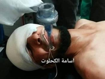 Krew Al-Aqsa TV, Sami Mosran mengalami kecederaan serius selepas peluru getah Israel terkena bahagian matanya.