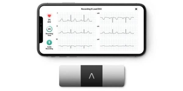 PERANTI KardiaMobile menggunakan teknologi artificial intelligence (Ai) menjadi monitor kawalan elektrokardiogram standard EKG atau ECG peribadi kepada pengguna.