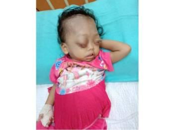 Keadaan semasa Nur Husna yang kini berada di Hospital Besar Pulau Pinang yang dikongsikan oleh Jasmin di Facebooknya