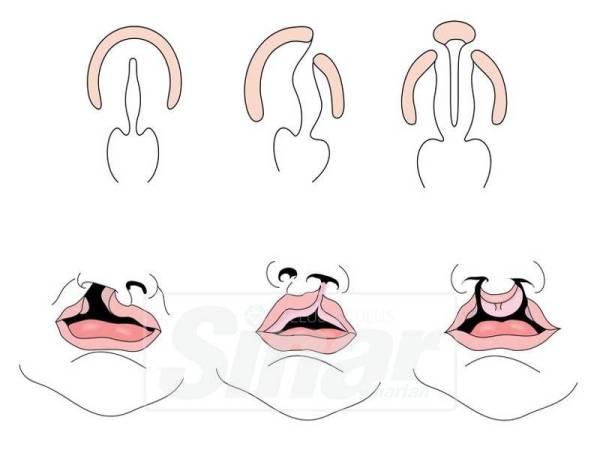 GAMBARAN keadaan bayi mempunyai masalah bibir sumbing.