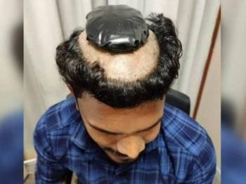 Seorang lelaki ditahan di Lapangan Terbang Kochi, India semalam apabila cuba menyeludup lebih 1kg emas di bawah rambut palsunya. - Foto India Today