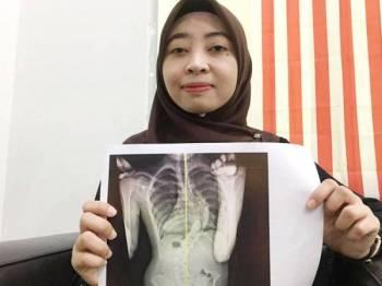 Syarmeliah menunjukkan gambar x-ray tulang belakangnya yang bengkok.