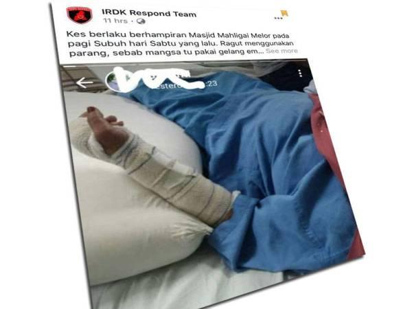 Gambar mangsa yang cedera dan mendapat rawatan di HUSM yang dikongsi di media sosial.