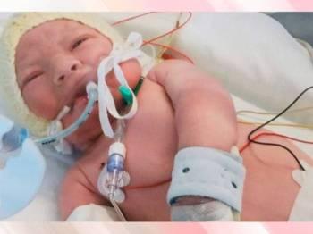 Ketika dilahirkan, Oscar tidak bernafas dan kebiruan menyebabkan doktor melakukan pelbagai usaha bagi menyelamatkannya.
