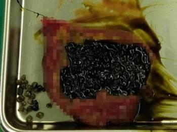 'Black pearl' ditemui dalam hempedu seorang pesakit hingga tular di laman sosial.