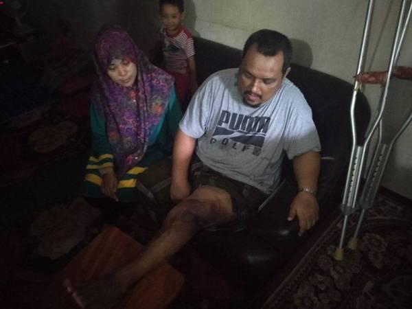 Nizal menunjukkan keadaan kakinya yang tidak dapat diluruskan selepas menjalani pembedahan pada 2013 lalu.