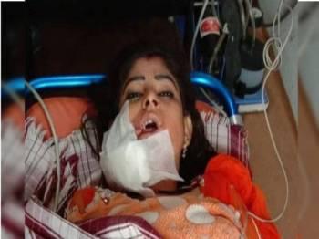 Mangsa yang cedera teruk di bahagian rahang dikejarkan ke hospital dalam keadaan kritikal namun kini dilaporkan semakin stabil.- Foto: SUSHEEL SHUKLA