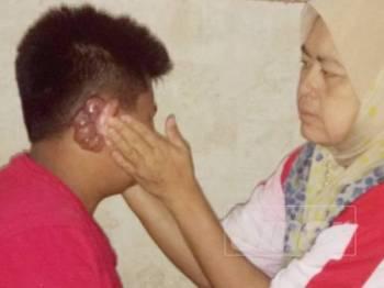 Earnie Yusnida menunjukkan ketumbuhan telinga yang dihadapi anaknya, Ahmad Ziqrie sejak berusia 12 tahun.