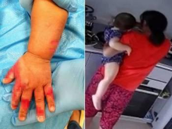 Tangan bayi perempuan terbabit alami kesan melecur akibat perbuatan amah terbabit. - Foto: Amy Low Mei Liang/Facebook