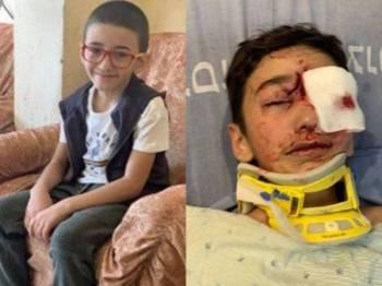 Malek Issa disahkan buta mata kiri selepas ditembak polis Israel dengan peluru keluli bersalut getah di Baitulmuqaddis Timur. - Foto Middle East Eye